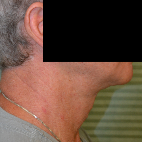 neck lift case 1044 after procedure right profile