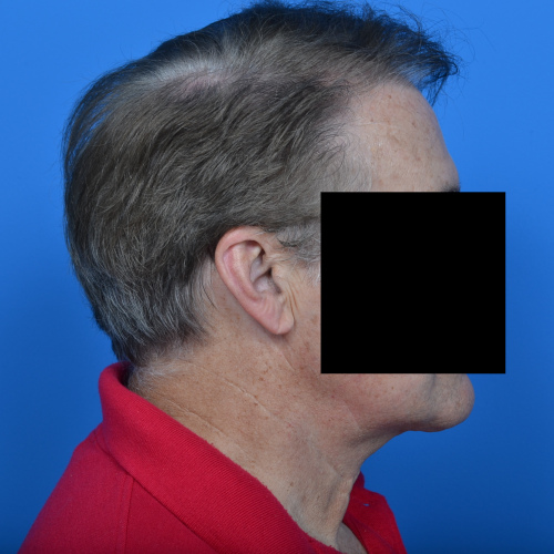 after necklift right profile view case 1032