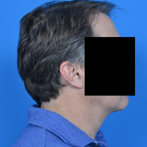 profile view of male patient after necklift case 1037