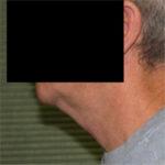 neck lift before procedure left profile 1044