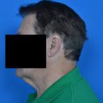 male patient before neck lift left side case 1032
