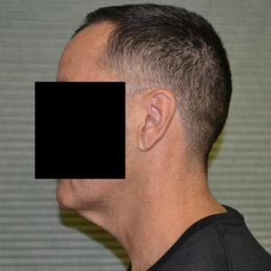 male patient before neck lift left side case 1049
