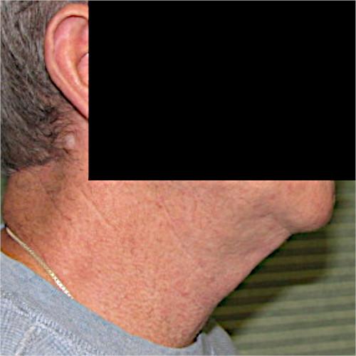 neck lift case 1044 before procedure right profile
