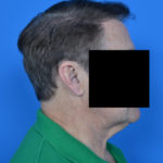 male patient before neck lift right side case 1032