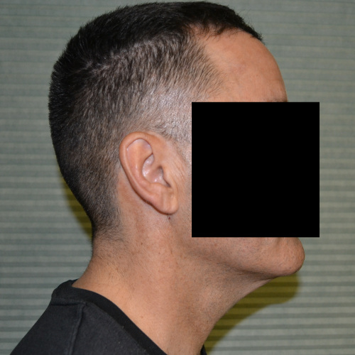 male patient before neck lift right side case 1049