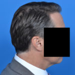 right profile view of male patient after necklift case 1037