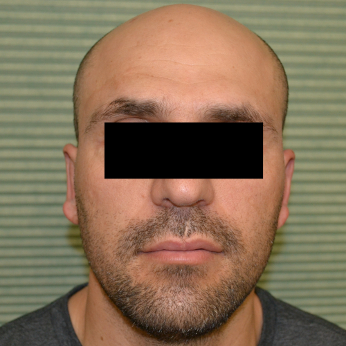 male patient after otoplasty front view case 1054
