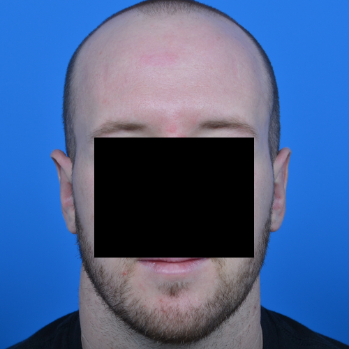 after otoplasty front view case 1080