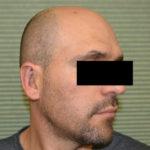 after otoplasty oblique view case 1054
