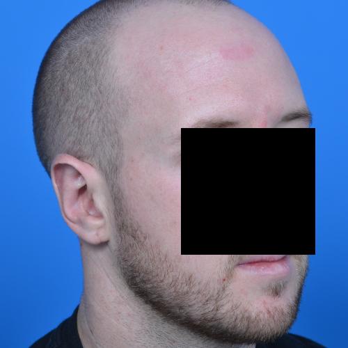 male patient after ear surgery oblique view case 1080