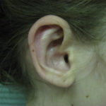 right side view of ear after otoplasty case 1075