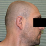 after otoplasty profile view case 1054