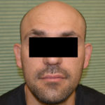 before otoplasty on male patient headshot case 1054