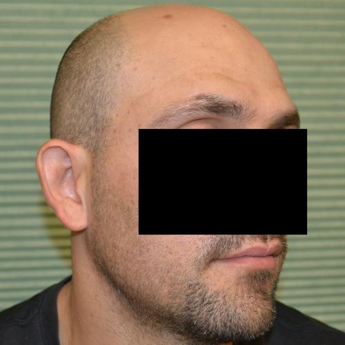 male patient after otoplasty oblique view case 1054