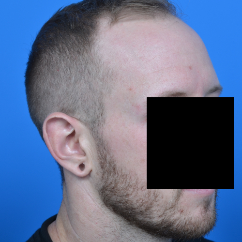 before ear surgery right oblique view case 1080