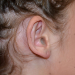 right ear before otoplasty case 1075