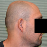 before otoplasty on male patient profile case 1054
