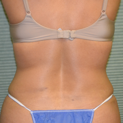 back view of tummy tuck case 1431 after procedure