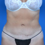 after tummy tuck front view case 1454