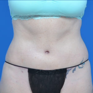 fonrt view abs of patient after tummy tuck case 1459