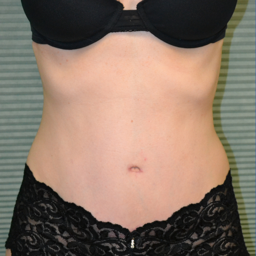 after tummy tuck procedure case 1467, front view