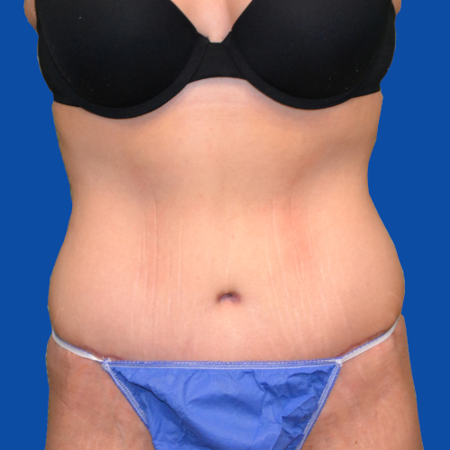 front view of tummy tuck case 1493