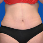 patient's abs after tummy tuck front view