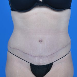 tummy tuck after front