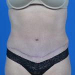 patient's abdomen after tummy tuck case 1580