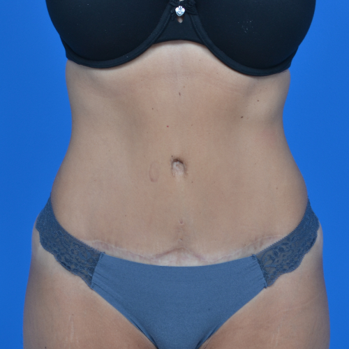 front view after tummy tuck, case 1600