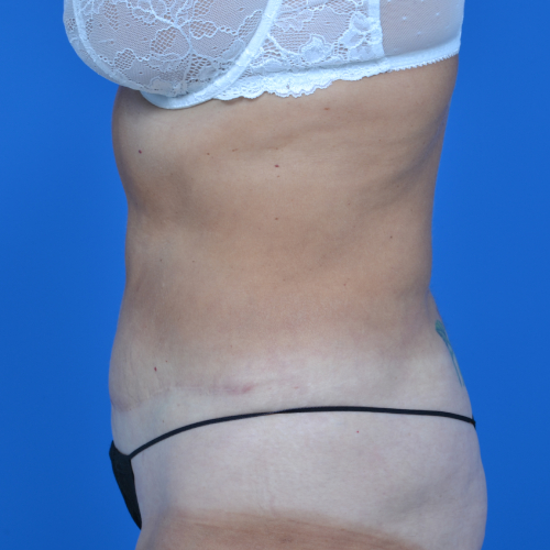 left side view of patient after tummy tuck case 1454