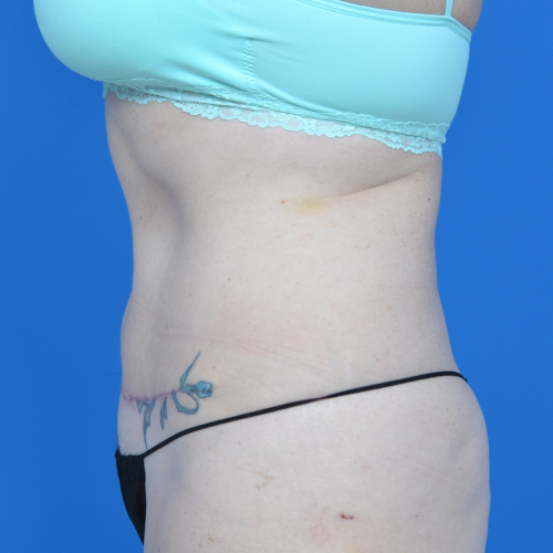 left side view abs of patient after tummy tuck case 1459