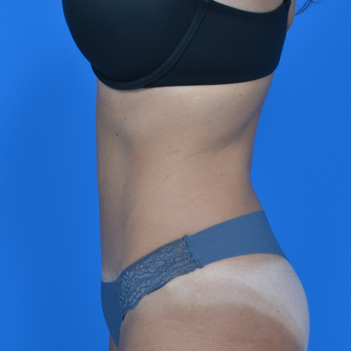 after tummy tuck, patient's left side case 1600