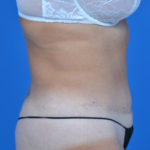 after tummy tuck right side case 1454