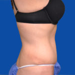 right side view of tummy tuck case 1493