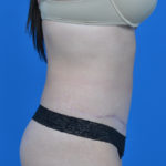 patient's right side view after tummy tuck case 1580