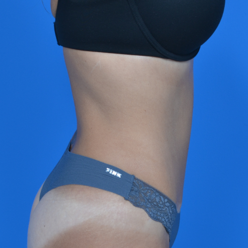 after tummy tuck, patient's right side case 1600