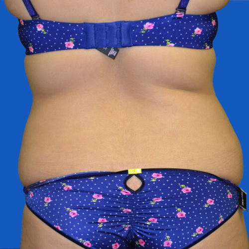 back view of patient's flanks before tummy tuck, case 1546