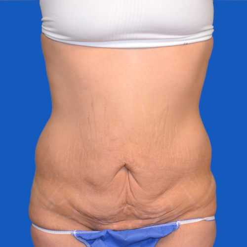 before tummy tuck front view case 1440