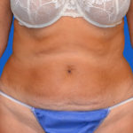 before tummy tuck front view case 1454