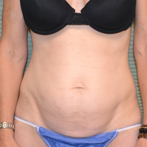 front view of patient before tummy tuck, case 1467