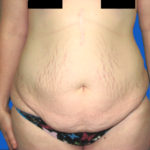 tummy tuck before front view case 1535