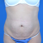 patient before tummy tuck, front view case 1580