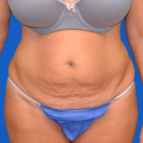 front view of patient before tummy tuck case 1600