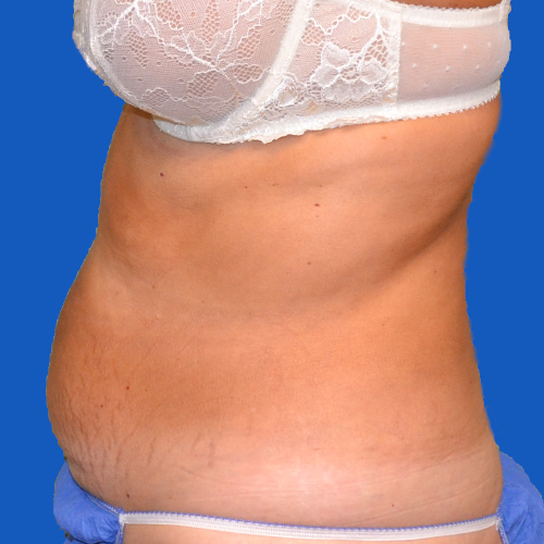 left side view of patient before tummy tuck procedure, case 1454
