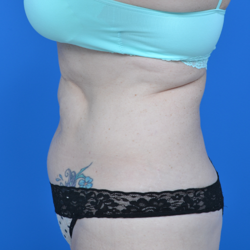 left side view abs of patient before tummy tuck case 1459
