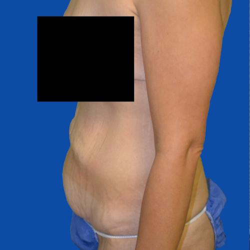left side before tummy tuck case 1493