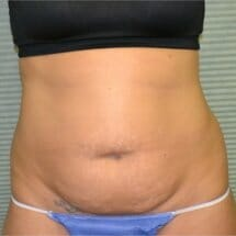 front view of patient before tummy tuck procedure