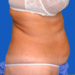 before tummy tuck right view case 1454