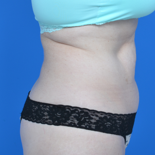 right side view patient's abs before tummy tuck, case 1459